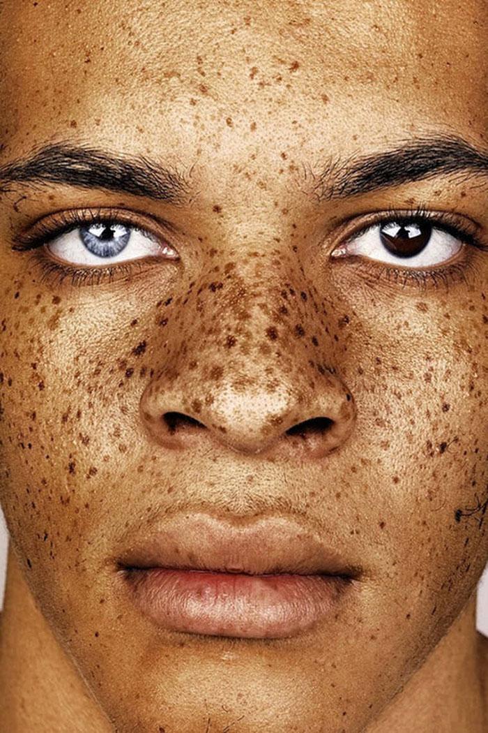 freckles-portrait-photography-brock-elbank-126__700