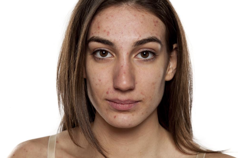 Skóra trądzikowa może być dużym problemem